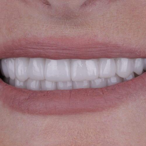 orthodontics results