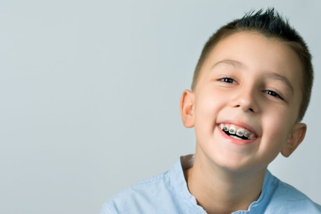 Braces in San Ramon, CA