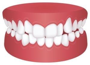 orthodontics in san ramon, california