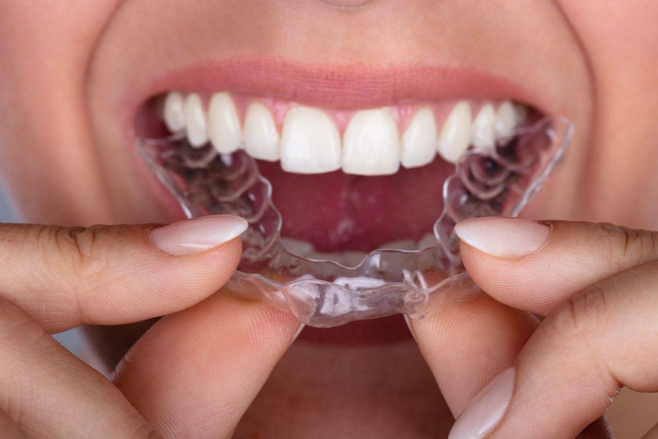 oral hygiene with Invisalign in San Ramon California