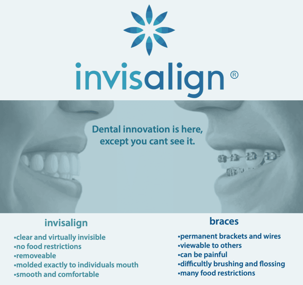 Invisalign infographic for Dr. Scott McElroy, DDS